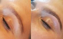 Eyebrow Revolution Treatment