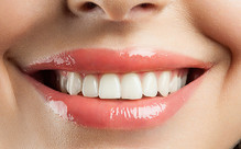 LED Teeth Whitening Package incl. Consult