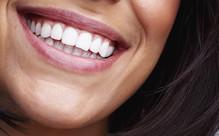 UK-Made Peroxide-Free Teeth Whitening