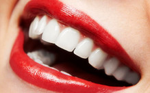 Teeth Whitening Treatment in Christchurch