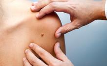 Full Body Skin Cancer & Melanoma Check
