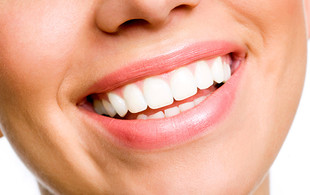 $79 for a Dental Exam, Two X-Rays & Scale & Polish (value up to $170)