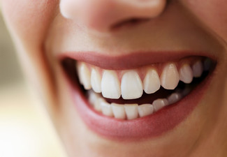 Revolutionary Laser Teeth Whitening Treatment - Option for Two People
