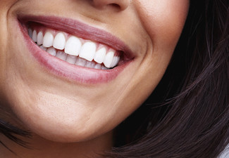 $89 for a UK-Made Peroxide-Free Laser Teeth Whitening Treatment for One Person or $175 for Two People & Two Teeth Whitening Pens (value up to $1,198)