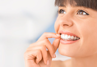 "$1,000 Voucher Towards Invisalign Braces incl. Complimentary ""No Obligation"" Assessment - Finance Options Available"