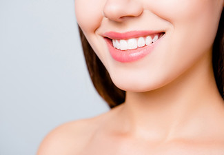 Deluxe Teeth Whitening Touch Up Session incl. Initial consultation & $20 Return Voucher - Options for Gold Session, Platinum Session or Diamond Session & for Sensitive Teeth