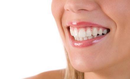 $45 for a Dental Exam incl. X-Rays, Scale & Polish (value $101)