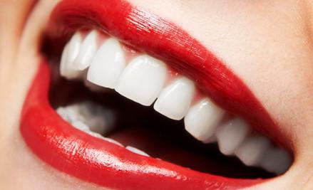 Teeth Whitening Treatment in Tauranga