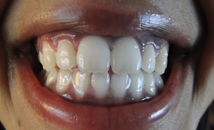 $169 for a One-Hour in Chair Laser Three-in-One Teeth Desensitising & Enamel Remineralising Teeth Whitening Package at 6 Locations (value $499)