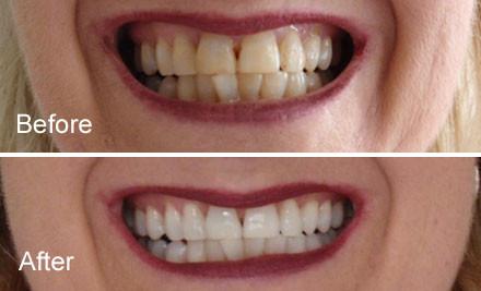 Image result for laser teeth whitening