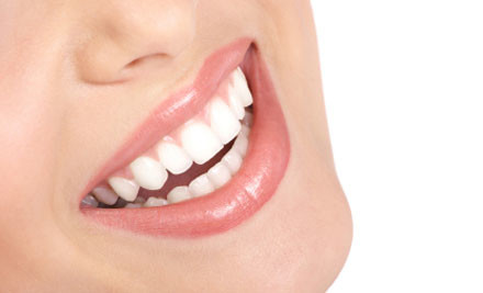 $49 for an Advance Teeth Whitening Kit incl. Nationwide Delivery (value $303)