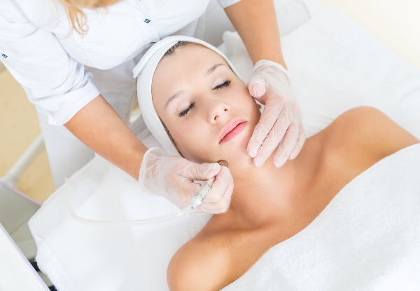 Microdermabrasion Skin Treatment with Eyebrow Tidy - Option for Relaxante Rejuvenation Facial