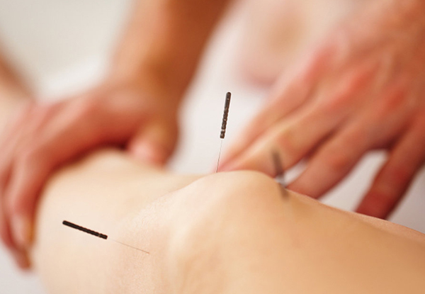 One-Hour Traditional Acupuncture - Option for One-Hour Cosmetic Acupuncture