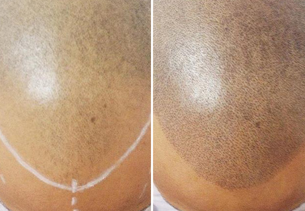 From $800 for a Complete Scalp Micropigmentation (SMP) Course Incl. Three Sessions – Options Incl. Scar Camouflage, Hair Density & Full SMP (value up to $3,000)