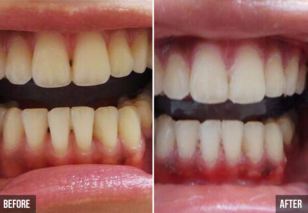 Beyond Advanced Laser Teeth Whitening Treatment incl. Full Consultation for One Person - Option for Two People - Valid at Three Locations