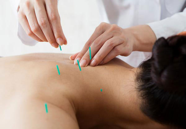 One-Hour Acupuncture or Sports Massage Session - Options for Two or Three Sessions Available