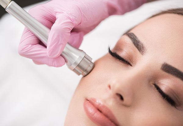 45-Minute Diamond Microdermabrasion Facial - Option to incl. an Active Complex Face Peel